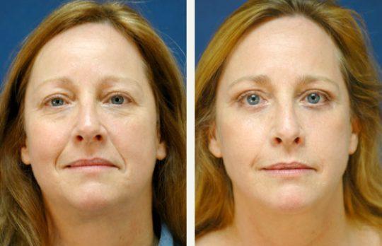 blepharoplastie photo avant apres